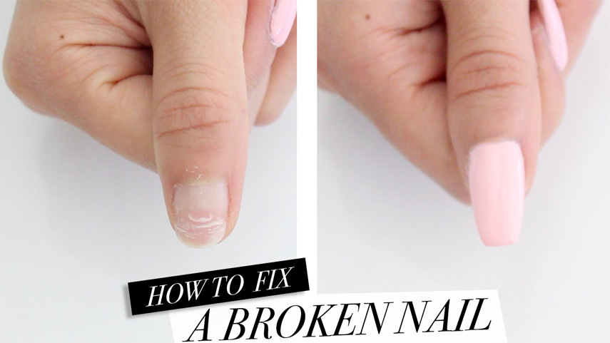 Diffe Nail Types Requires Repair
